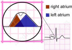 What pathology does this ECG finding represent?