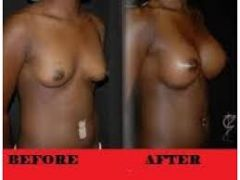 It stimulates the Tissues and Muscles thus Increasing the size of your breasts ,hips or bums and bringing you comfort and sexual pressure with your man! +27737105667