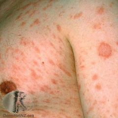 Common rash characterised by an annular erythematous patch with a colarette of scale. 7-10 days after herald patch see scaly red lesions on trunk and limbs - long axis of lesions tends to follow skin lines
