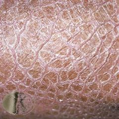 Mutations in the filaggrin gene (tends to be in both alleles as opposed to one in atopic dermatitis)  Diffuse polygonal scaling that tends to spare the flexures, keratosis pilaris, and hyperlinear palms. 1/3 have atopic dermatitis