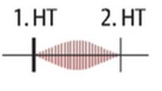 - Spindelförmiges Systolikum mit PM über Aortenklappe und Austrahlung in die Karotiden - 2. HT kann gespalten sein - bei höhergradiger Stenose 4. HT (Zeiche des erhöten Füllungsdruck)