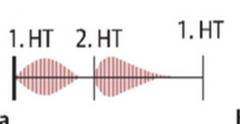 - Holodiastolisches decrescendo Geräusch über Erb bzw. Aortenklappe   - Weitere Geräusche die auftreten können:   → Systolikum (relative Aortenstenose infolge ↑Schlagvolumen)   → Austin-Flint-Geräusch (rumpelndes spähtdiastolisch...