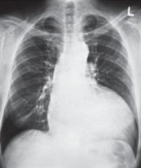 - Kardiomegalie   - Erweiterte Aorta ascendens