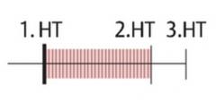 - Bandförmiges Systolikum mit PM über Herzspitze mit Ausstrahlung in die Axilla   - leister 1. HT   - Pulmonalschlusston betont   - evtl. 3. HT