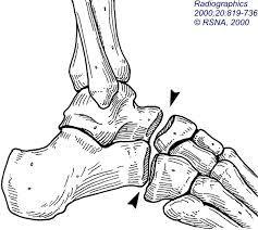 equinus deformity to prevent do Achilles lengthening and transferred tibialis anterior tendon