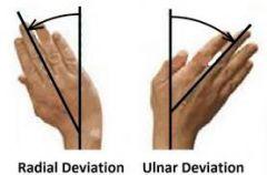 Ulnar deviation  (Pic on left)