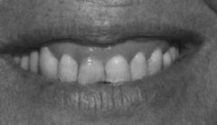 Patient has a gummy smile. What is a perio tx you can do to fix this? What parameter must be checked before you do this tx?