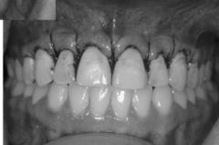 Gingivectomy. Must ensure that they have enough attached gingiva and sulcular depth!