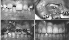 used to uncover labially impacted maxillary anterior teeth.