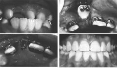 Used to uncover labially impacted maxillary anterior while maximally preserving attached gingiva