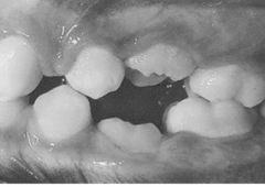 Patient has ankylosed molars that need to be extracted and later replaced with a implant. What is the sequence of the tx?