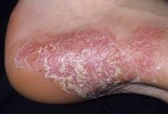 Causative: Immune mediated, T-lymphocytes and dendritic cells play central role.    Symptoms: erythematous plaque (skin buildup), patches, and papule; sometimes look more red (eczema) than silvery patches found on elbows, knees; chronic   Differen...