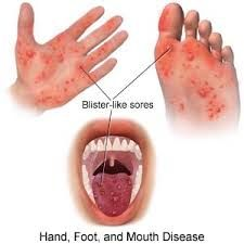 Causative: Coxsackievirus A16 or other enteroviruses; painful white vesicles with red halo   Symptoms: painful ulcers in mouth, palm of hands, soles of feet and buttocks.  Small, red papules progress to ulcerative erythematous base    Differential...