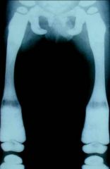 1-the diagnosis is osteopetrosis  2-The defect is inactive osteoclast carbonic anhydrase  3-the treatment for autosomal recessive high-dose Calcitrol 1, 25.hydroxy vitamin D and bone marrow transplant  4-the x-rays look like ERLENMEYER flask, ru...