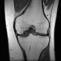 An 11-year-old boy complains of 4 weeks of medial knee pain that began while playing tennis. Examination shows reproduction of pain with internal rotation of the tibia during extension of the knee, and relief of pain with tibial external rotatio...