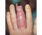 A 42-year-old male diesel mechanic presents to your clinic 3 days after he was power washing automotive parts with a high-pressure solvent and accidently hit the tip of his finger with the spray gun. A clinical photo is shown in Figure A. What is ...