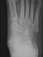 An 18-year-old male complains of a painful prominence over his medial midfoot for the past 2 years; NSAIDs and orthotics have failed to provide relief. Physical exam demonstrates a firm, nonmobile, tender bump on the medial midfoot with no skin ch...