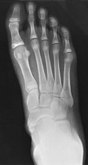 the best x-ray to get external oblique view to rule out an accessory navicular  1st line treatment isactivity restriction and UCBL orthoses arch supports and a 2nd line treatment is a short period of cast immobilization if this fails then excised