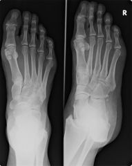 what is the diagnosis and what is the treatment?  what is the mechanism of injury??