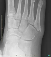 what is the diagnosis and what is the treatment?