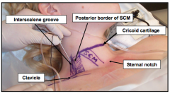 the groove between the anterior and middle scalene muscles at the level of the cricoid cartilage