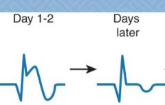 ekg changes with ischemia