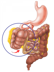 A capacious and mobile cecum flips over and is trapped by the fixed ascending colon.