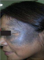 Nevus of Ota  Usually V1/V2 distribution, can involve sclera, sometimes bilateral
