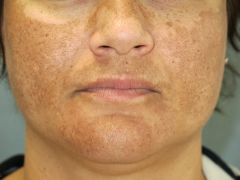 Hyperpigmentation of the nipples, labia and the linea nigra; melasma (deep brown/grey pigmentation of skin on cheeks & forehead) -Can also see on COCP