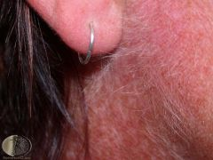 Growth of hairs that are longer, thicker, or more obvious than you would expect at a particular site.    -Malnutrition, anorexia nervosa, dermatomyositis, porphyria cutanea tarda (PCT)