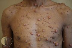 Mutations of neurofibromin 1(NF1) or 2 (NF2) are associated with neurofibromatosis, but 'peripheral' NF is due to mutations of NF1.  Features: -Cafe au lait macules (more than 5 is abnormal); axillary freckling; neurofibromas (with a cha...