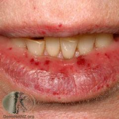 Autosomal dominant disorder, characterised by small AV malformations that look like 1-3mm flat red spots. -Lesions are common on the lips, oral and nasal mucosae, skin (especially hands), and GI tract. -Frequently presents with nose blee...