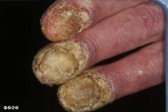 Psoriasis, lichen planus, tumours