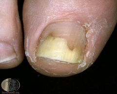 Separation of the distal nail from the nail bed. It is frequently a useful diagnostic sign. Causes include: psoriasis, dermatophyte infection, trauma - thyroid disease (rare)