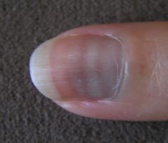Changes to nail growth that have in common interruption or disturbance of the growth of the nail in the nail matrix. The common result is one or more 'tidy' convex bands of disturbance.    -Multiple lines may reflect chemo