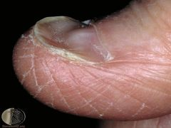 Spoon-like nails seen in iron deficiency/normal