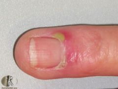 Inflammation around the nail. - Usually the result of acute or chronic infection gaining access via an abnormal cuticle, such as you see in eczema, or in individuals whose hands are frequently exposed to water or solvents.    Acute - pain, sw...