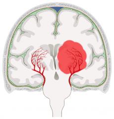 Aa. lenticulostriatae = Aa. centrales anterolaterales aus A. meningea media > Versorgung von Stammganglien, Capsula interna & Teilen des Thalamus