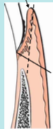 Gingivectomy ( solid black line)