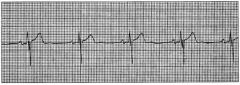 The client is to receive the afternoon dose of nifedipine. The nursenotes this rhythm on the cardiac monitor.
