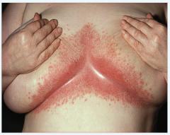 - Windeldermatitis (Säuglinge) - intertriginöse Kandidose → konfluierende, papulovesikuläre, scharfrandige, entzündliche Effloreszenzen mit Schuppen häufig auf dem Boden einer Dermatitis seborrhoides