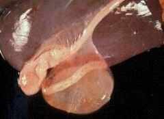 1) C. tenuicollis 2) Fascioliasis. 3) Contamination 4) Pleurisy/pneumoni 5) Abscess.