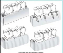 1. Vertical Grooving   2. Radicular Blending   3. Flattening interproximal bone   4. Gradualizing Marginal bone
