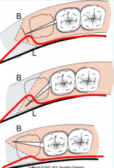 Which of these distal wedge incisions in themandibleis the preferred method?