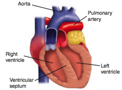 - Aorta leaves RV (anterior)  - Pulmonary trunk leaves LV (posterior) - Leads to separation of systemic and pulmonary circuits - Not compatible with life unless a shunt is present to allow mixing of blood (eg, VSD, PDA, or patent foramen ovale)...
