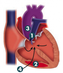 How can you improve symptoms in Tetralogy of Fallot?