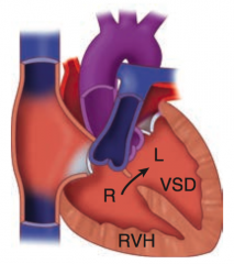 - Uncorrected L→R shunt (eg, VSD, ASD, PDA) → ↑ pulmonary blood flow → pathologic remodeling of vasculature → pulmonary arteriolar HTN  - RVH occurs to compensate → shunt becomes R→L  - Causes late cyanosis, clubbing, and polycyt...