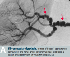 - 90% Primary (Essential), related to ↑ CO or ↑ TPR - 10% Secondary to renal disease, including fibromuscular dysplasia in young patients