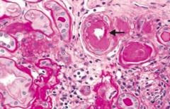 Hypertensive Nephropathy - renal arterial hyalinosis on PAS stain