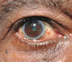 - Lipid deposits in cornea - Appears early in life with hypercholesterolemia - Common in elderly (arcus senilis = D)